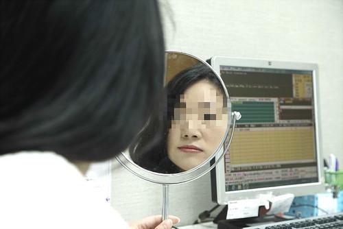 愛美又怕隆鼻失敗?台中整形外科黃仁詮醫師分享安心隆鼻有辦法