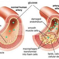 Obat Penurun Kadar Ureum dan Kreatinin Tinggi Resep Dokter di Apotik