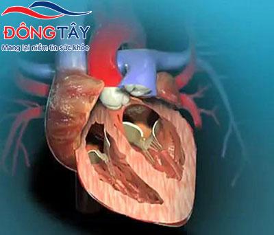 Van tim nhân tạo được thay thế bởi van tim bị tổn thương khi hở van tim ở mức độ nặng