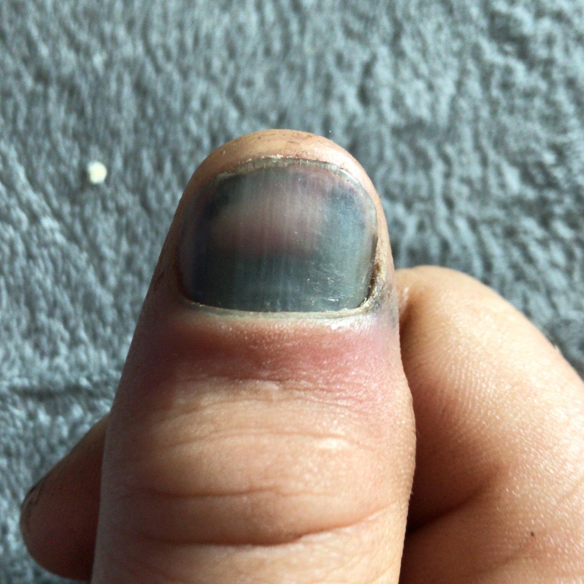 Black thumb