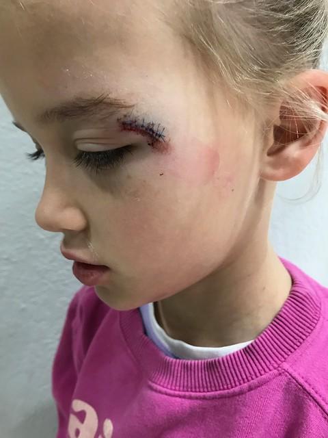 Kinley's eye injury