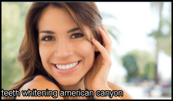 American Canyon Teeth Whitening