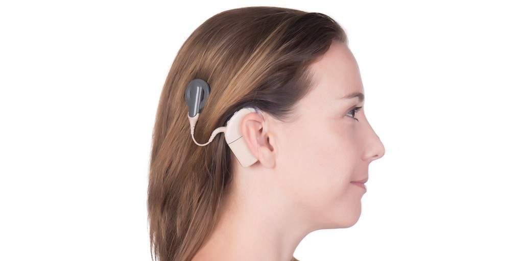 Implants cochléaires : Utiliser la lumière pour mieux entendre