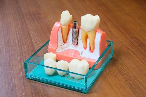 高雄前鎮人本自然牙醫施昆育醫師分享:植牙前不能忽略兩大關鍵