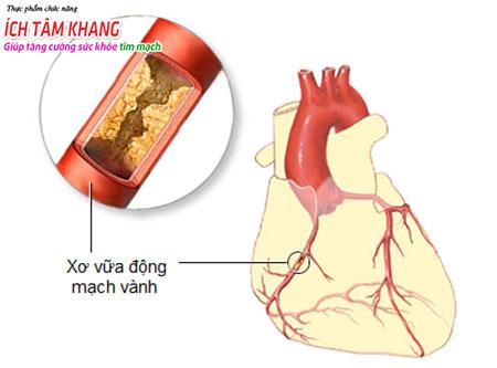 Thiếu máu cơ tim: từ nguyên nhân đến giải pháp chữa trị?