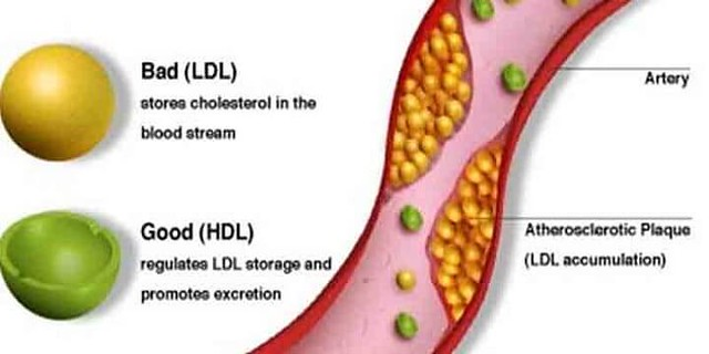 4600 6 Ways to reduce cholesterol level in your body 01