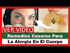 Remedios Caseros Para La Alergia En El Cuerpo, Alergia Comezon En Todo El Cuerpo, Alergia Cuerpo