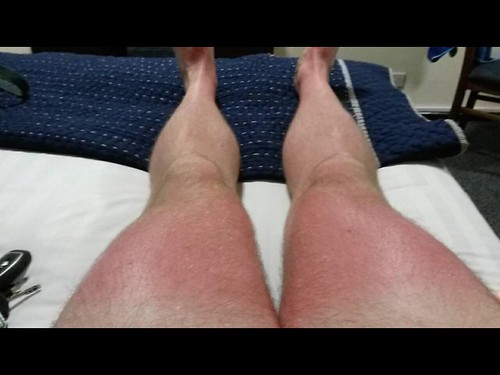 Sunburnt summer legs.