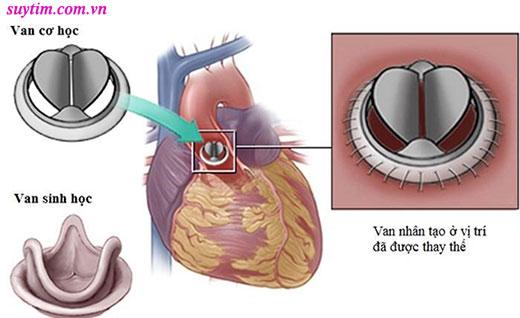 Thay van tim là chỉ định phổ biến trong điều trị bệnh van tim