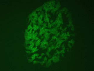 Bovine-specific pluripotent gene- controlled GFP reporter is activated in a human pluripotent stem cell colony.