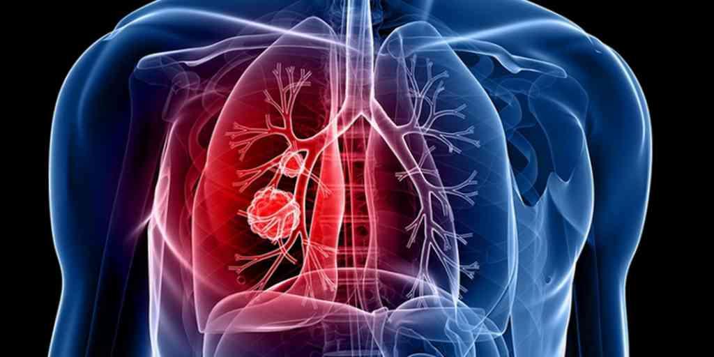 Le cancer : Une nouvelle approche sans nuire aux cellules saines