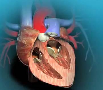 Obat Penyakit Jantung Bocor Bawaan lahir