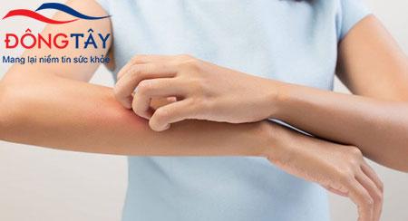 Ngứa da là một trong những triệu chứng tiểu đường