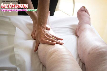 Sưng, phù nề ở chân, tay và bụng là triệu chứng điển hình của suy tim tâm trương