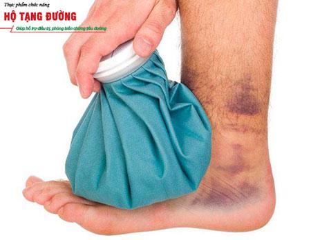 6 biến chứng bàn chân của bệnh tiểu đường và cách phòng tránh