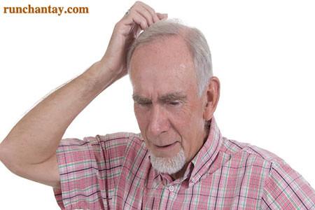 Một trong những biến chứng của bệnh Parkinson chính là suy giảm trí nhớ