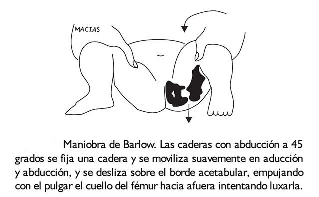 Figura 18 - Maniobras de Barlow