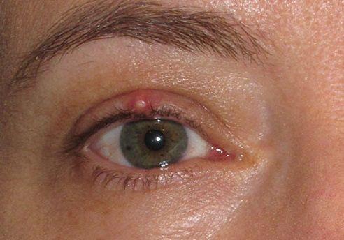 Obat Mata Untuk Hordeolum