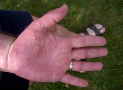 Cara Mengatasi Kulit Pecah-Pecah Pada Jari Tangan