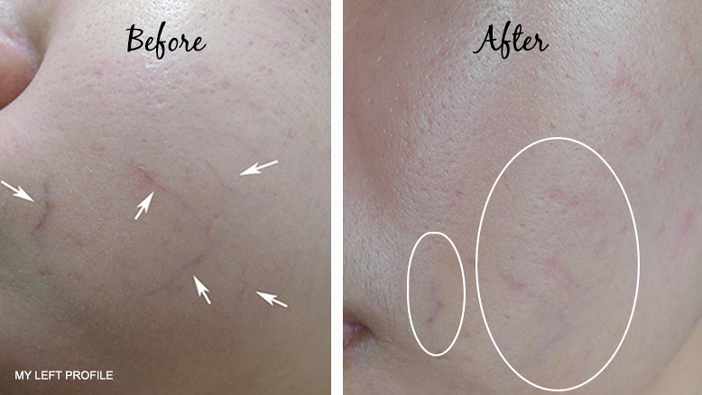 Remove Spider Veins DRX