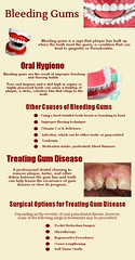 Top Reasons for Bleeding Of Gums