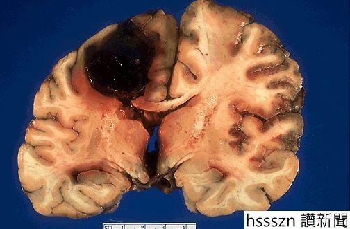 intracerebral-hemorrhage_504_331