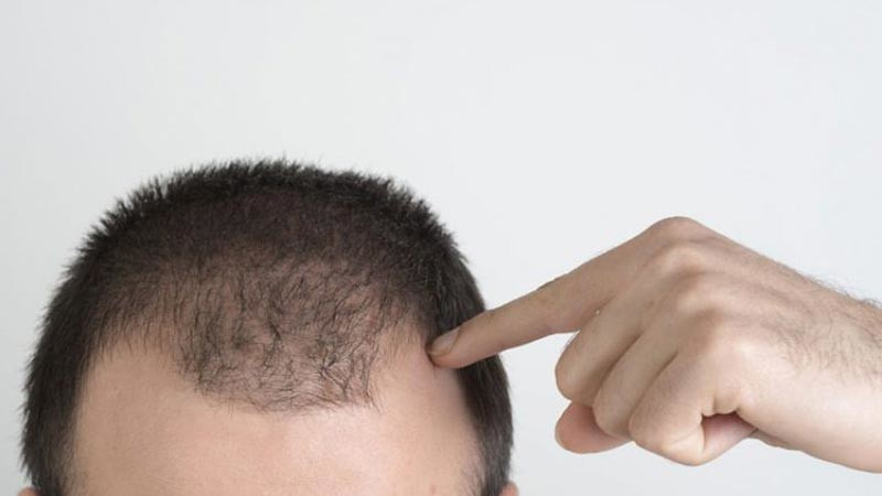 Kerontokan rambut pada pria.