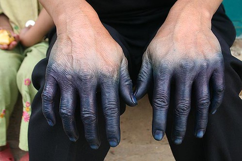 dyed hands