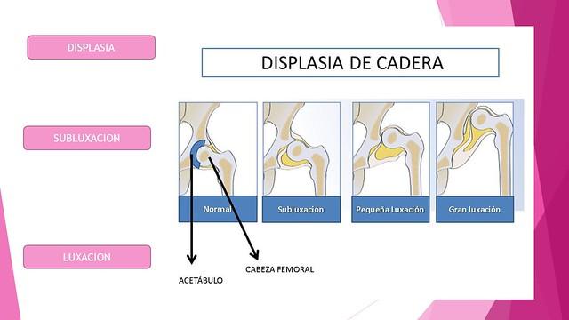 Figura 20 - Clasificación alteraciones de la DDC