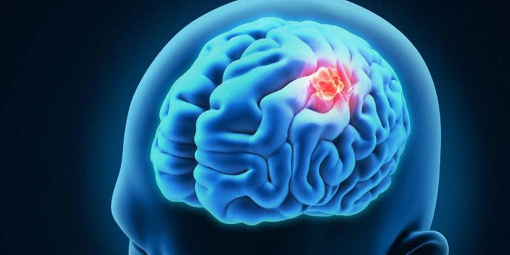 Une nanoparticule de médicament pourrait combattre le cancer du cerveau