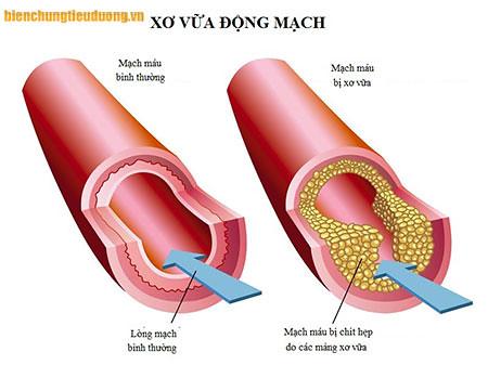 Đường huyết cao làm viêm vi mạch, và xơ vữa động mach