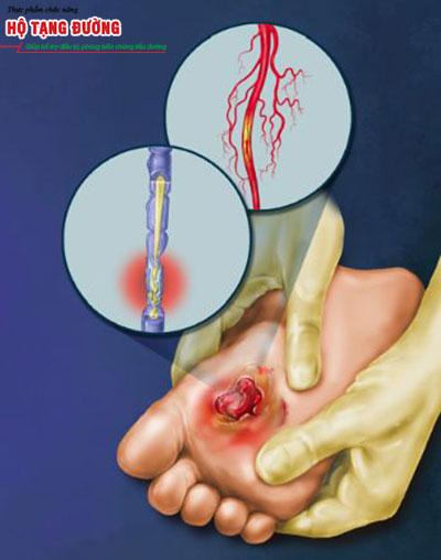 Đường huyết tăng cao làm tăng nguy cơ biến chứng bàn chân ở người tiểu đường