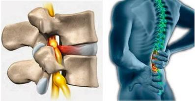 cara mengobati syaraf kejepit di punggung