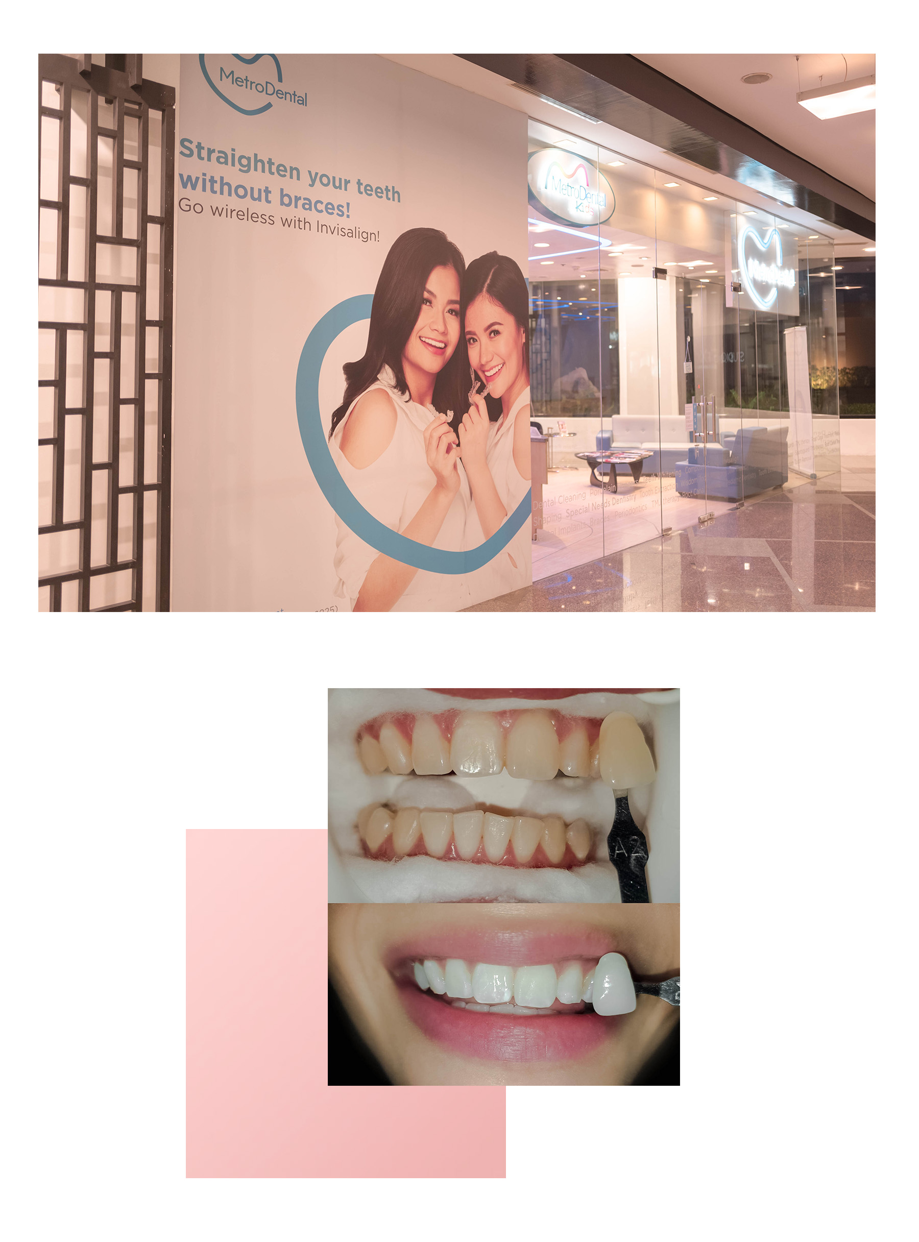 VV Skin Teeth Whitening 3