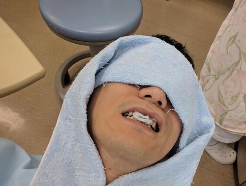 前歯をついに新しい差し歯にして待っている図