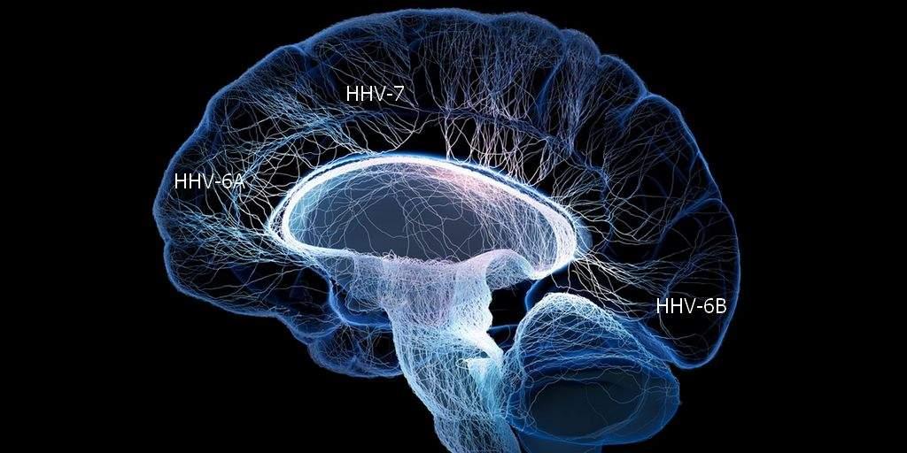 Les virus jouent un rôle dans la maladie d'Alzheimer