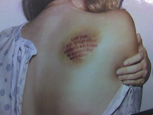 Physical signs of an abusive dating relationship