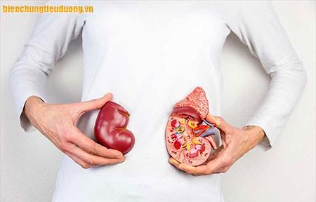 Biến chứng tiểu đường suy thận