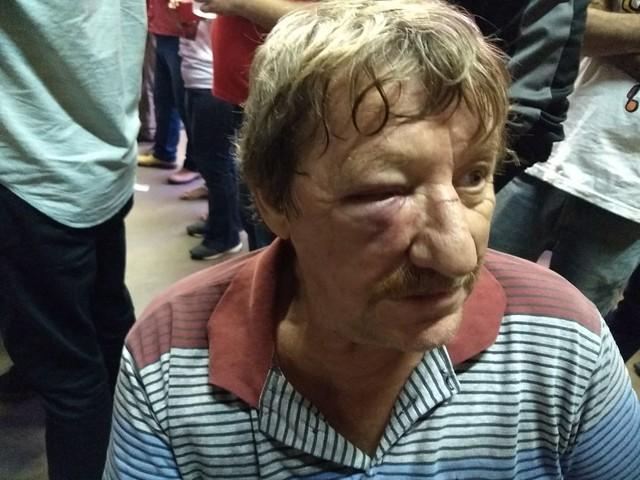 33fc23fa2 Padre Idalino Alflen levou uma pedrada na cabeça e foi atropelado por uma  motocicleta quando