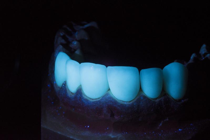 False Teeth Under UV