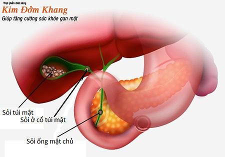 Nguyên nhân gây sỏi mật và cách phòng ngừa hiệu quả