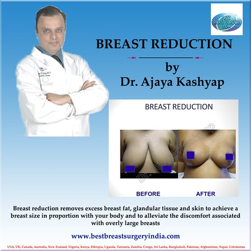 breast reduction by plastic surgeon dr ajaya kashyap