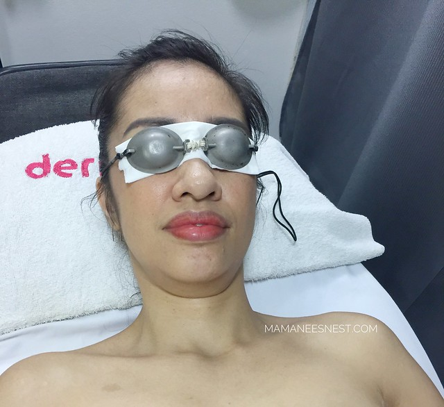 Dermclinic Nulight Treatment