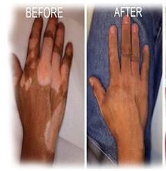 Cara Cepat Hilangkan Vitiligo
