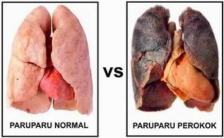 Obat Paru Paru Basah Untuk Pecandu Rokok