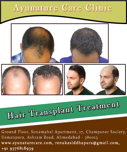 Best Hair Transplant Treatment in Ahmedabad