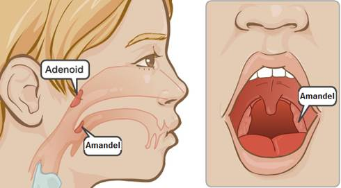 Cara Mengobati Adenoid