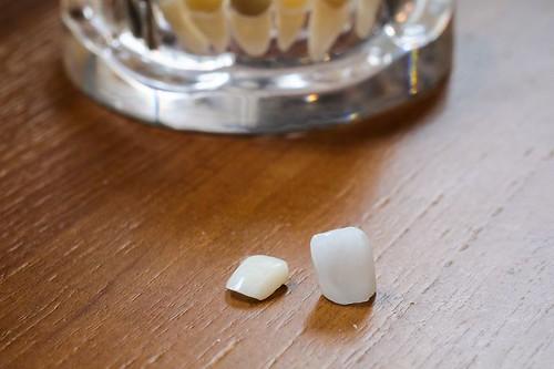 高雄人本自然牙醫完成了我的願望,我終於有一口潔白的牙齒啦~ (10)