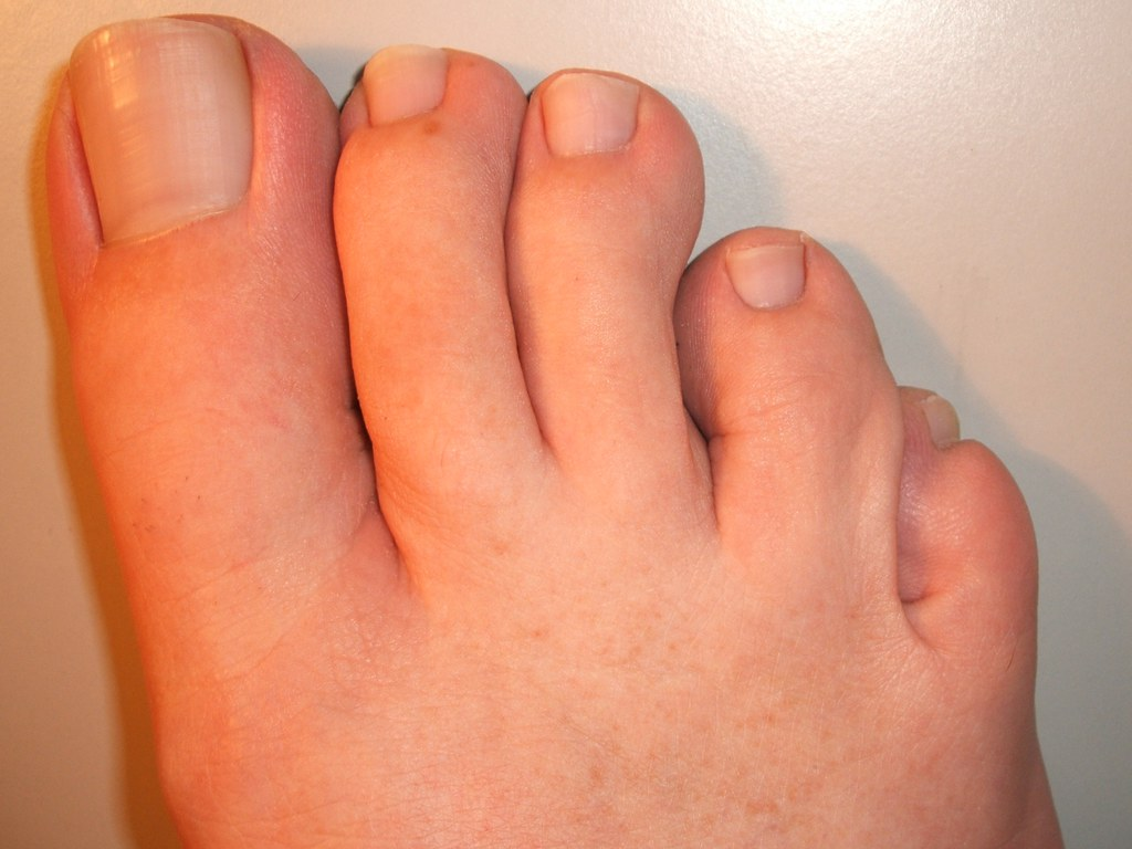 Image result for foot