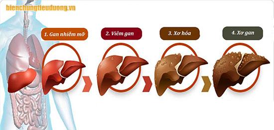 4 giai đoạn của biến chứng tiểu đường trên gan.